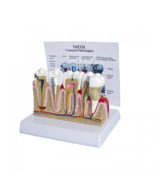 Anatomique Modèle de maladie commune des dents
